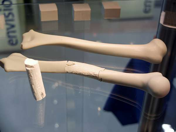 3D bioprinten van kraakbeen binnen vijf jaar haalbaar