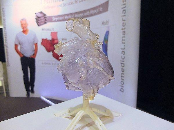 Materialise groeit in 3D visualisatie en printen voor medische toepassingen