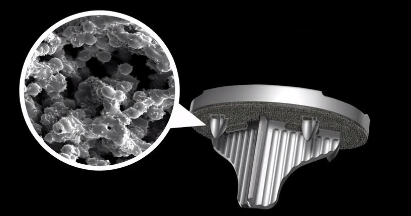 Stryker wil 3D printfabriek voor medische implantaten