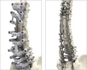 Op de linker foto zijn de geleidingen goed zichtbaar (foto 3D Systems)
