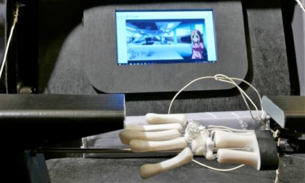 3D printen helpt chirurgen Brunelli plastiek ingreep te oefenen