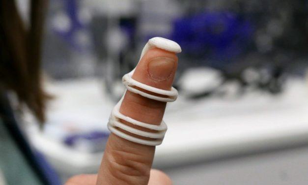 3D geprinte Exo X3M spalk verbetert patiëntenzorg