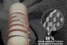 Photo of Z3DLAB gaat nieuwe legering voor botimplantaten ontwikkelen