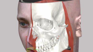 Photo of Shapeways gaat medische modellen 3D printen voor Armor Bionics